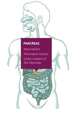 Pancreas - Reflux, Stomach Pain, Ulcers - SEE NOTES ON CASE